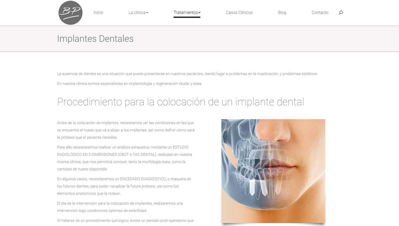 Diseño web para dentistas